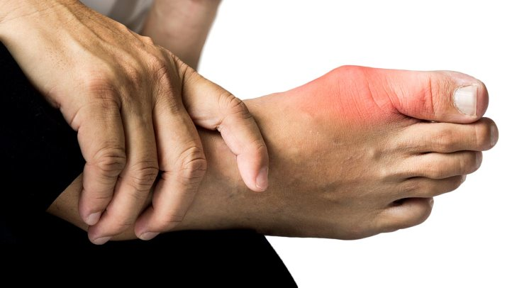 Treat Arthritis and Gout